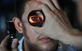 Химические ожоги глаз: симптомы и лечение