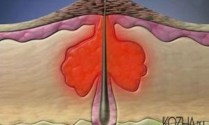 Причины появления и лечение прыщей наполненных кровью