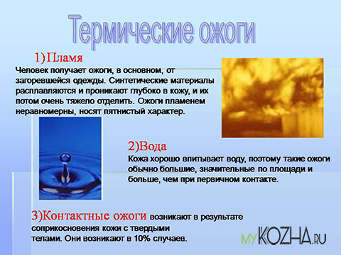 Термические ожоги