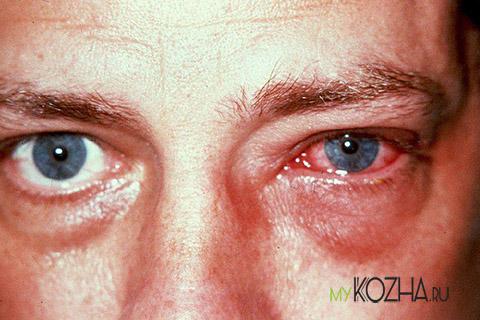 Ожог роговицы и сетчатки глаза