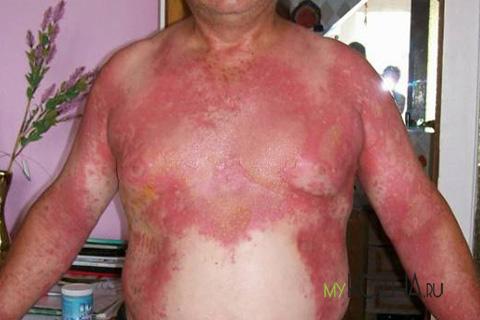 борщевик фото ожоги лечение