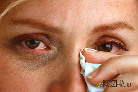 слезотечение глаза при ожогах
