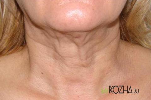 морщины на шее после похудения