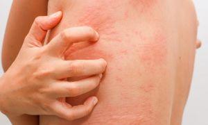 Симптомы диагностика и лечение крапивницы