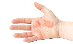 Причины, симптомы, диагностика и методы лечения экземы