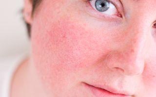 Причины появления, этапы развития, симптомы и лечение розацеа