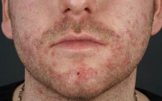 Причины появления, симптомы и лечение сикоза (фолликулита)