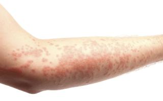 Причины появления, симптомы и лечение крапивницы