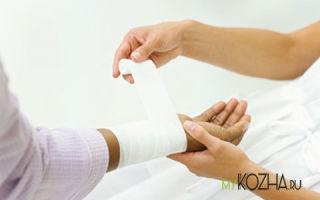 Как подобрать лучшее средство для лечения ожога?