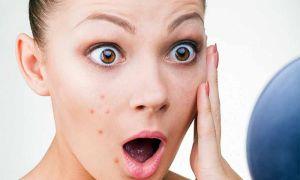 Причины появления и лечение прыщей на щеках у женщин