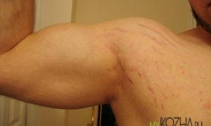 Причины появления и лечение растяжек на руках