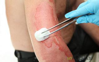Как восстановить кожу после ожога