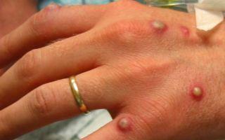 Пиодермия: причины и признаки заболевания, классификация, диагностические методы, лечение и профилактика
