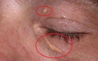 Причины появления, признаки, течение болезни и лечение Ксантелазмы