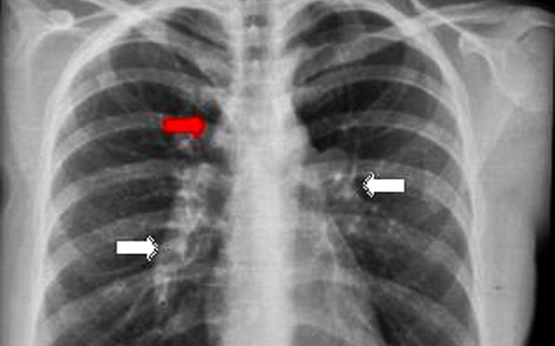 диагностика саркоидоза, рентгенологические признаки