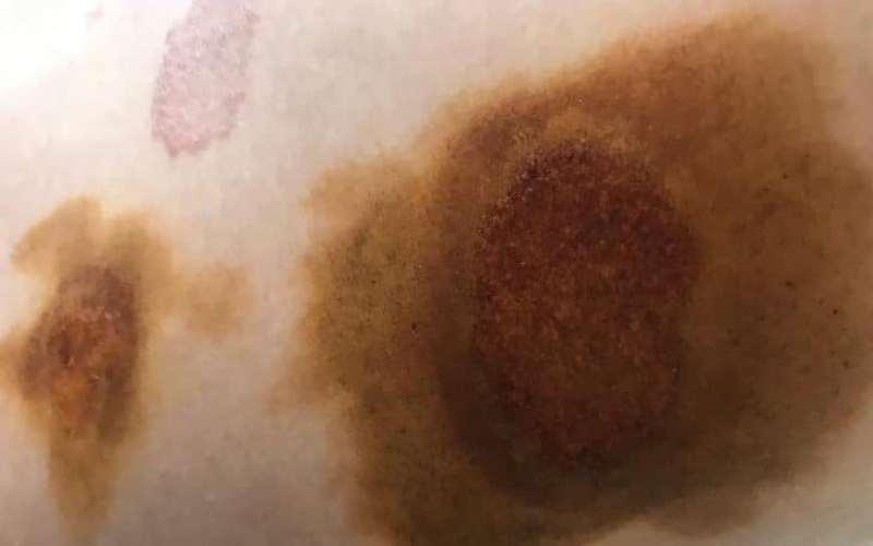 йодная проба, пятна пораженные грибком более темные