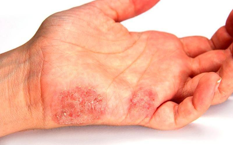 микробная экзема с язвами на кисти руки