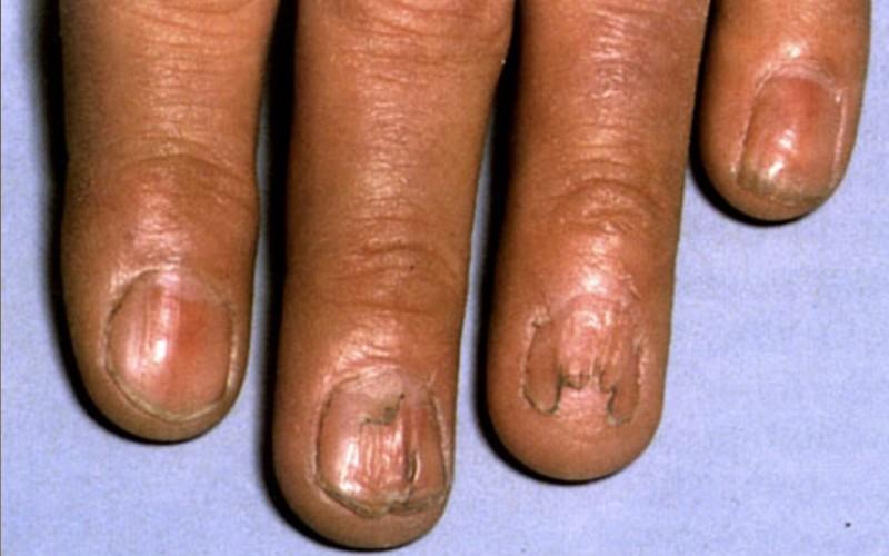 ониходистрофия, поражения ногтевых пластин при красном плоском лишае