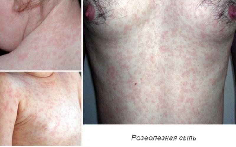 розеолезная сыпь при сифилисе