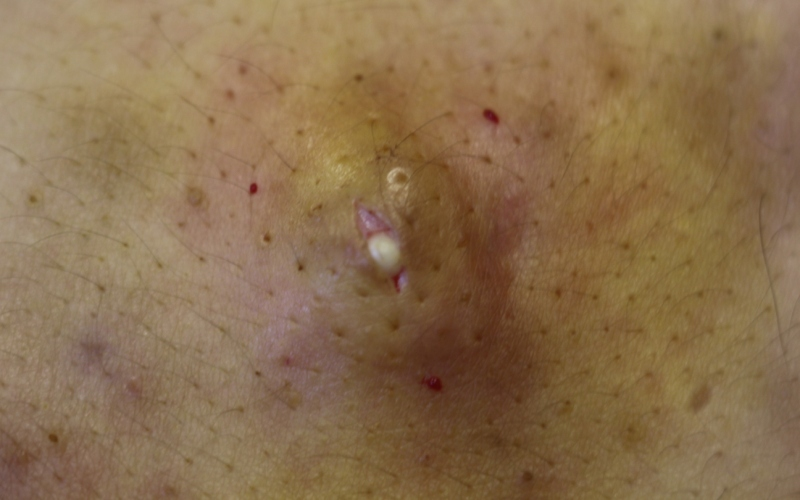 себум, кожное сало, выделяющее из эпидермальной кисты