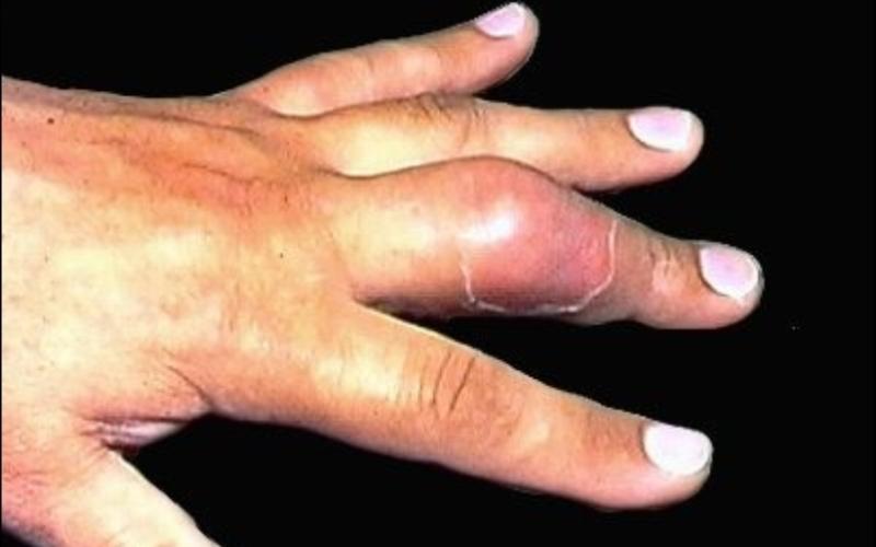 сухожильный панариций, отек тканей, гиперемия, нарушение движения