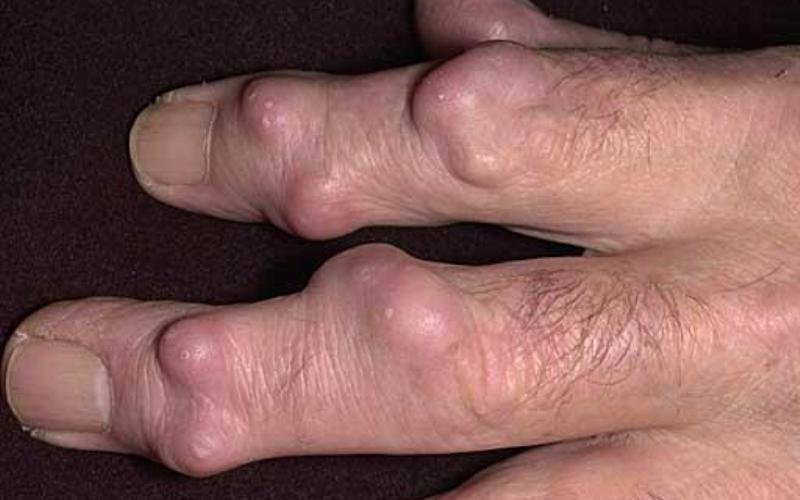 гигрома на суставах пальцев рук, множественная