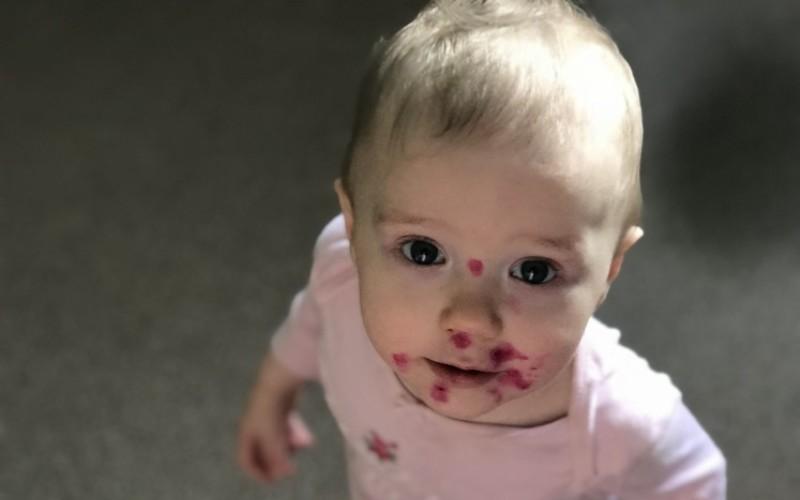 Стрептодермия у ребенка, обработка фукорцином