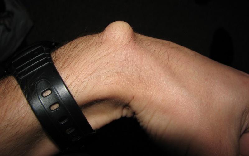 гмгрома лучезапястного сустава