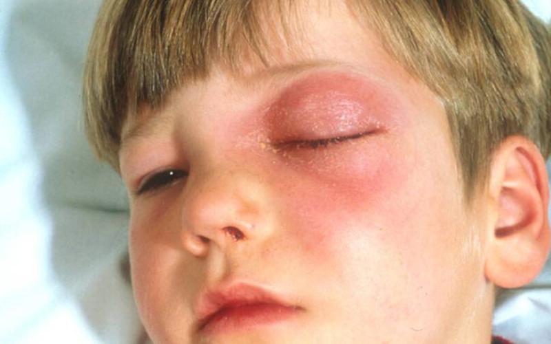 Флегмона орбиты глаза у ребенка