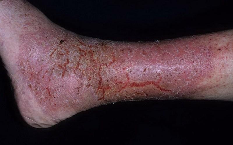 экзема при варикозе на ноге