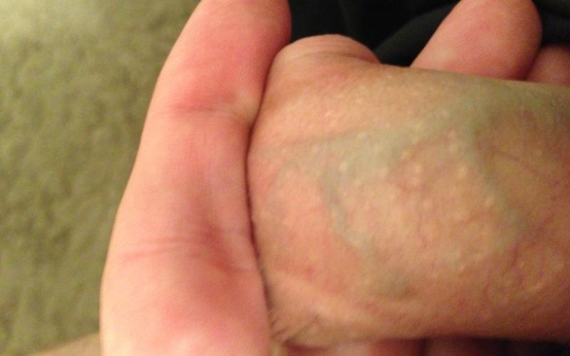 гранулы фордайса на коже полового члена