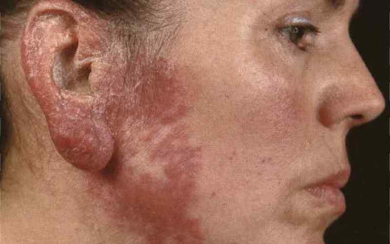 Туберкулезная волчанка, изменение структуры кожи, покраснение, бугорки