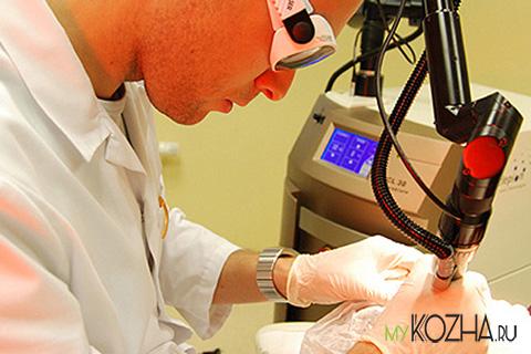 лазерное лечение рубцов, шрамов