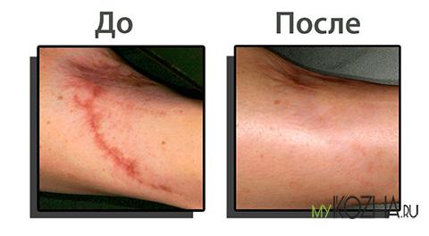 шрам до и после
