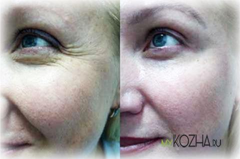 морщины вокруг глаз до и после