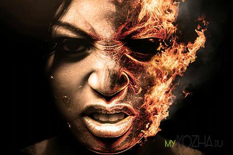 ожог лица