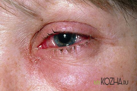 термический ожог глаз