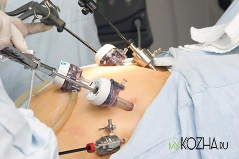 шрамы-после-лапароскопии