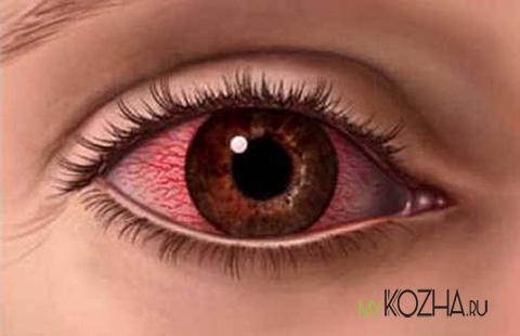 ожог-глаз