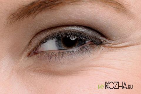 мимическими-морщинами-в-области-глаз