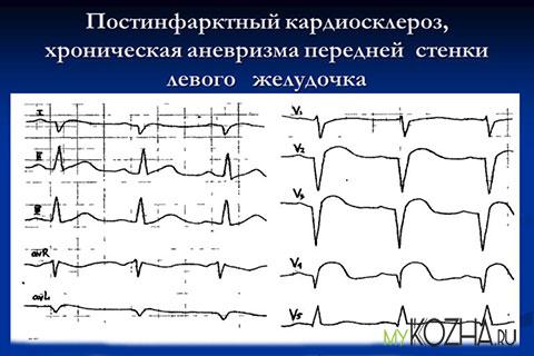 Постинфарктный-кардиосклероз сердца