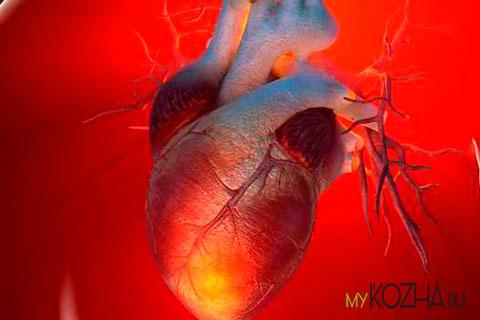 Рубец-на-сердце