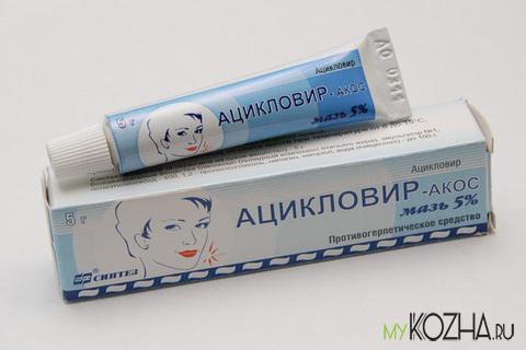 """Применение """"Ацикловира"""" для лечения герпеса"""