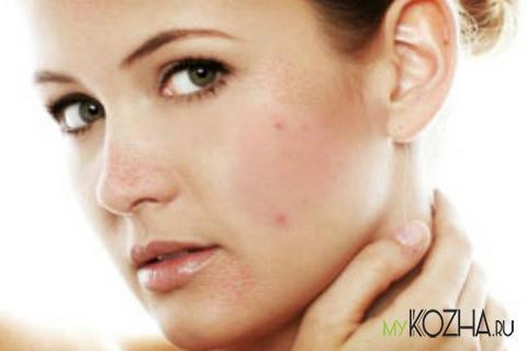 Последствия увеличения количества андрогенов в женском организме