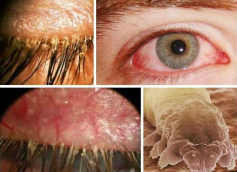 демодекоз век, гиперемия коньюнктивы, бедесые следы на ресницах, разрастание капиллярной сети