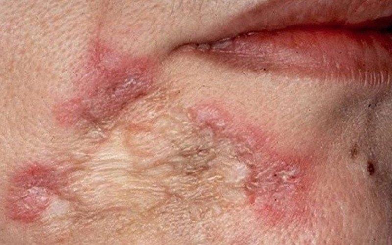 рубцы на коже после разрешения люпом или туберкулезных бугорков на коже