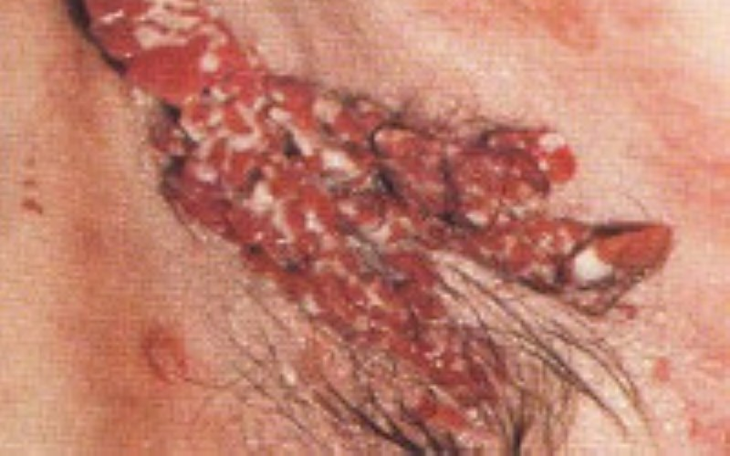 Вегетирующая форма болезни, поражение подмышечной области