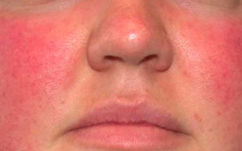 гиперемия лица при демодекозе, эритематозная стадия
