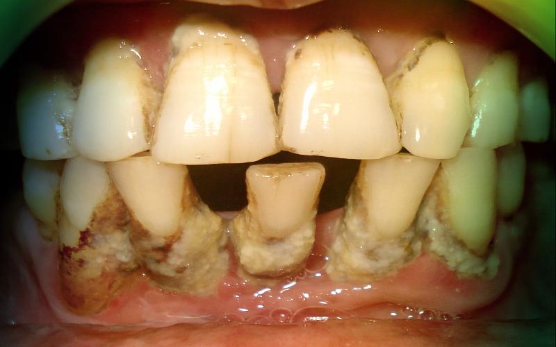 Парадонтоз, зубной налет, зубной камень