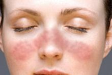 Туберкулезная волчанка - красные бугорки на коже лица